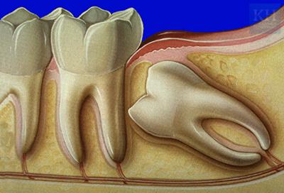 лазерное отбеливание зубов гомель